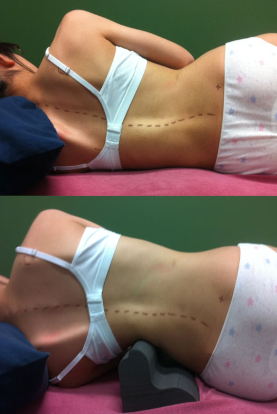 Scoliroll Scoliosis treatment